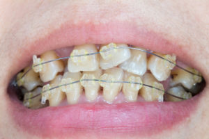 orthodontist san antonio